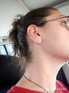 Bed bug bites on my neck and face (ew).